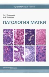 Патология матки. Руководство для врачей