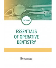 Essentials of operative dentistry